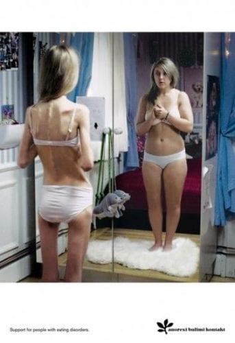 anorexie-pub-choc-500x728